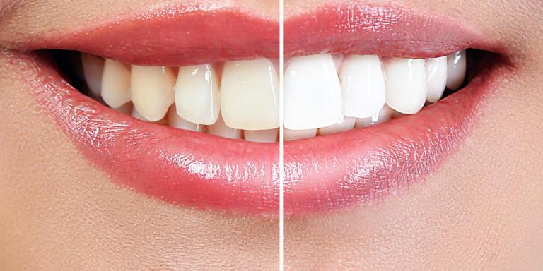 Tanden bleken - Dema Balance Your Life